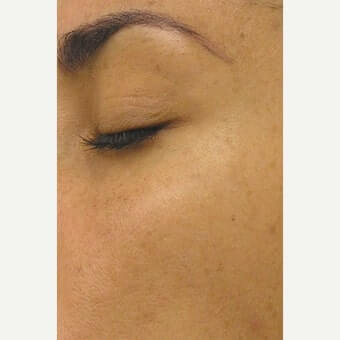 The AgeLess Center client after hydrafacial