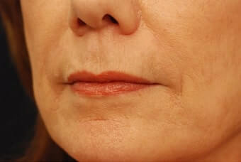The AgeLess Center client after injectable fillers