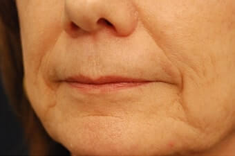 The AgeLess Center client before injectable fillers