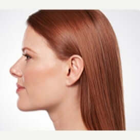 The AgeLess Center client after kybella for chin