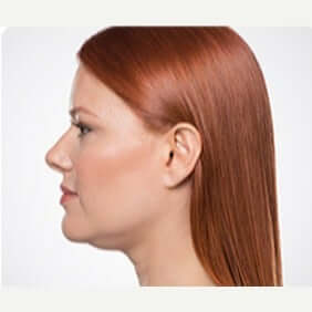 The AgeLess Center client before kybella for chin