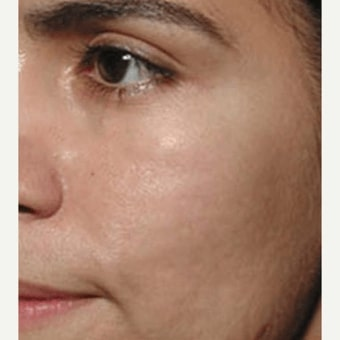 The AgeLess Center client after microneedling treatment