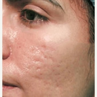 The AgeLess Center client before microneedling treatment