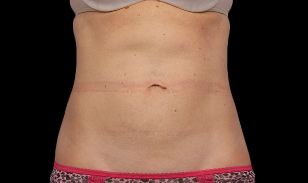 The AgeLess Center client after coolsculpting