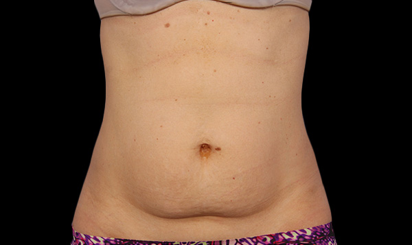The AgeLess Center client before coolsculpting